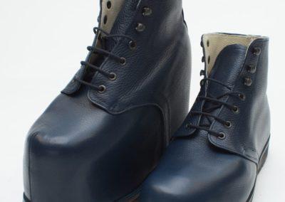 Orthopädische Schuhe bei massiver Beinlängendifferenz