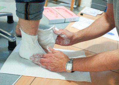 Mithilfe eines Gipsmodelles können wir die korrigierte Fußform genau erfassen