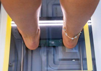 Zur Beurteilung der Fußstellung wird ein Fuß-Scan angefertigt